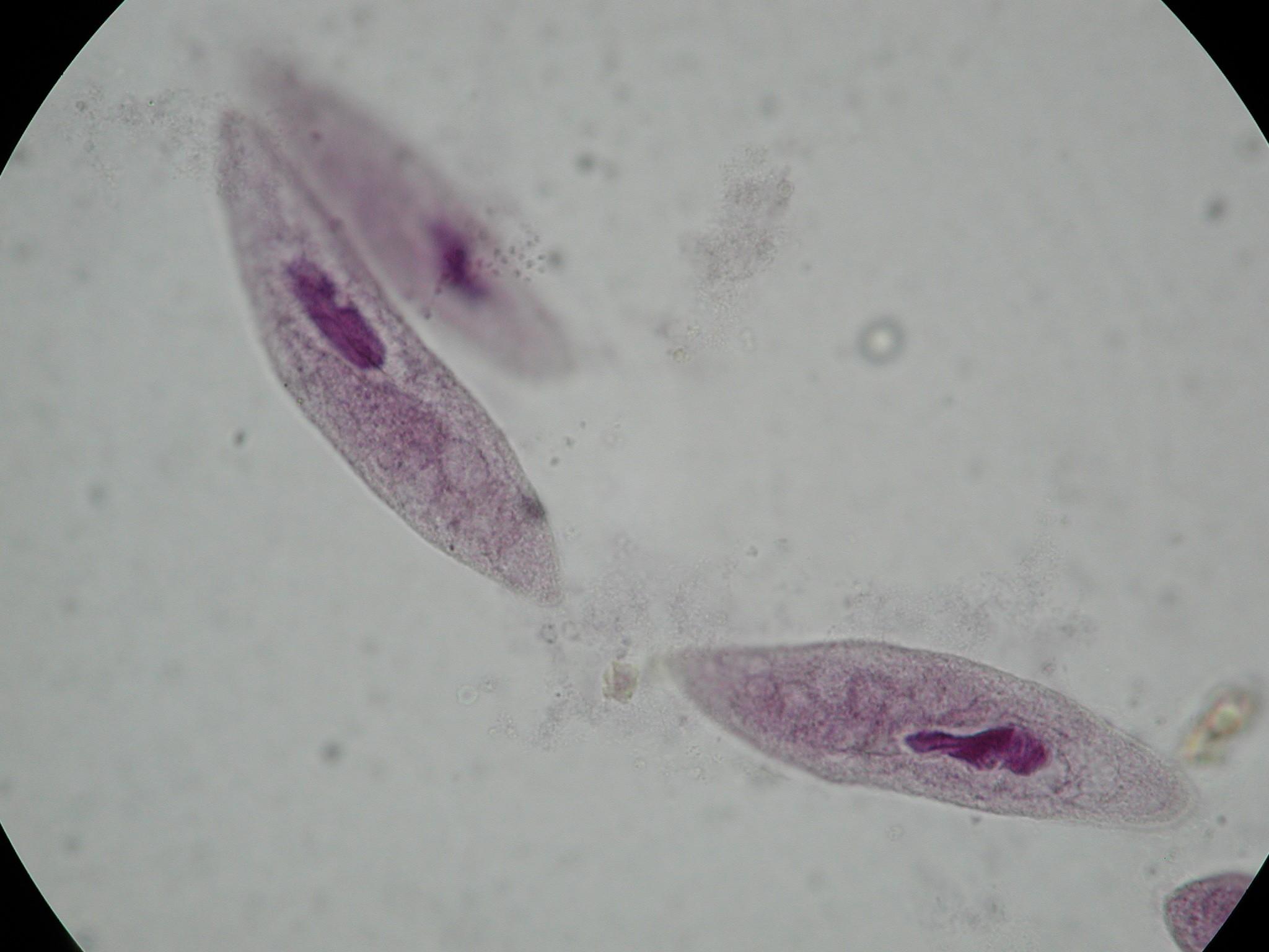 Protozoa and Porifera